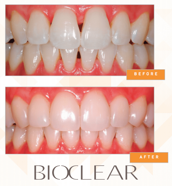 bioclear composite bonding in Plano TX