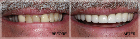 Dental Crown Treatment by Plano Dentist Dr. Grapevine