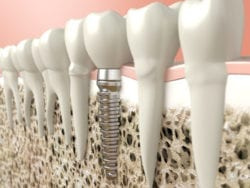 dental implant in jaw bone at Dr. Jacob Grapevine, DDS Signature Dentistry