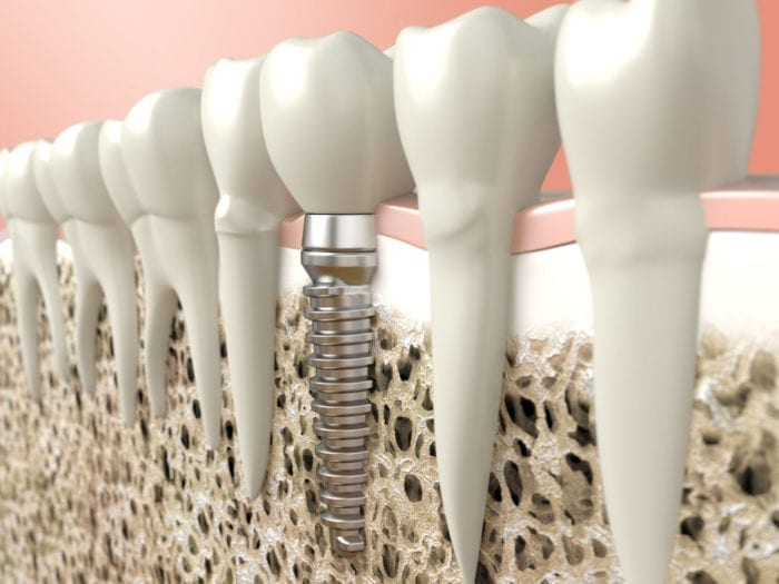 dental implant in jaw bone plano tx implant dentist