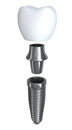 dental implant model single tooth implant frisco tx dental implant dentist