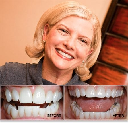 Smart Moves Treatment for Orthodontic Relapse by Plano TX Dentist Dr. Grapevine