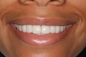 patient after dental veneers