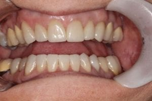 patient after dental crowns