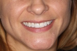 S.D.-after dental veneers