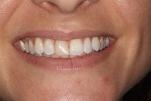 SD-before dental veneers