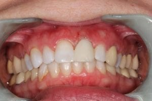 alison-maricle-before dental implant