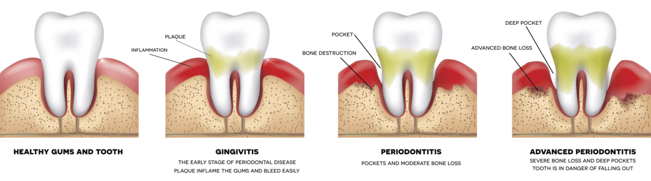 gum disease progression plano tx periodontal therapy