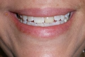 patient-a-before dental veneers