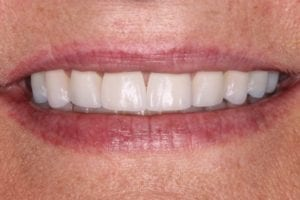 patient-b-after dental veneers