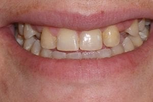 patient-e-before dental crown