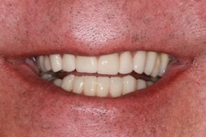 patient-f-after dental crowns