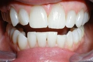 patient-f-before dental bonding
