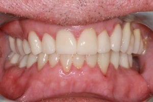 patient-g-after dental crowns