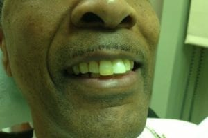 ron-baxter-before dental implants