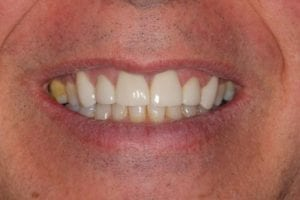 terry-farley-after dental crowns