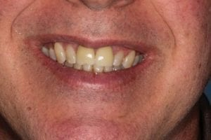 terry-farley-before dental crowns