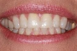thumbs_patient-c-before dental veneers