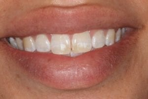 patient before zoom whitening