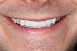 Teeth whitening for yellow teeth in Plano TX