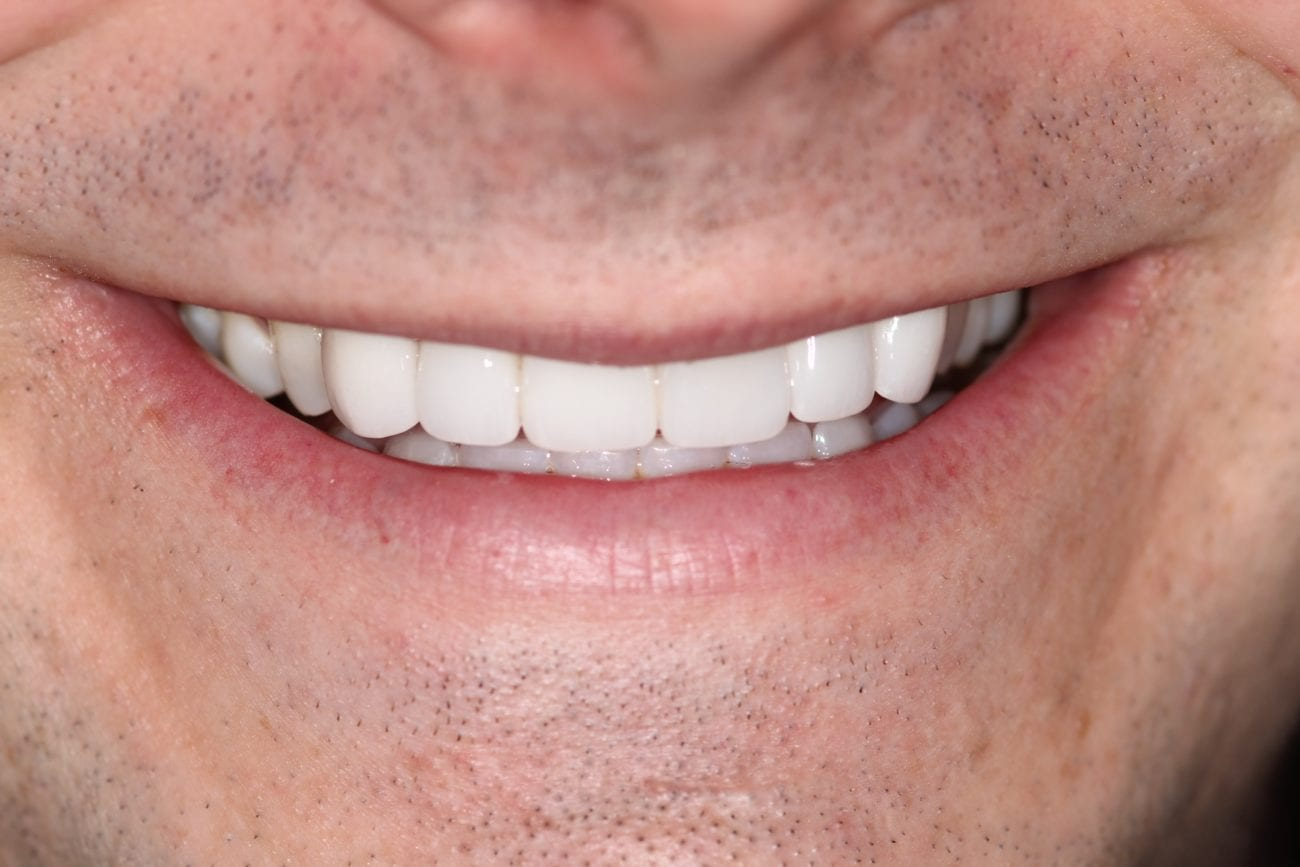 Secondary Gallery Image  | S.W. Veneers