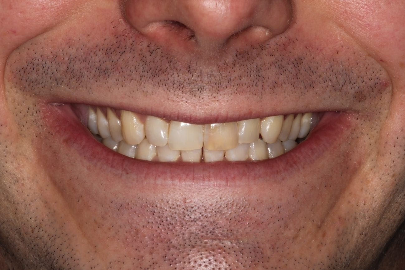 Main Gallery Image  | S.W. Veneers