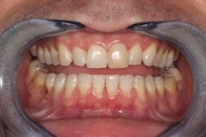 teeth whitening and bonding in Plano TX