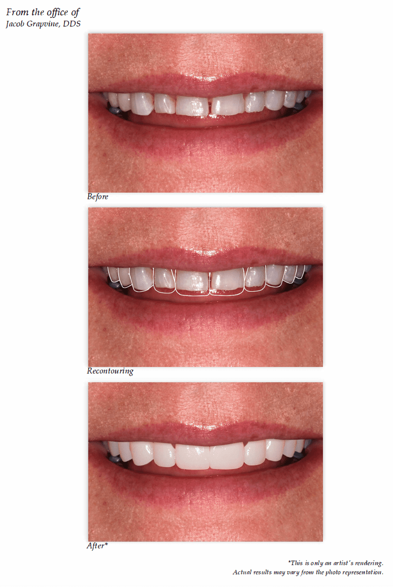 Digital Preview Of Your Smile Makeover
