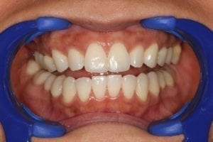 Cosmetic bonding for gaps in teeth by Jacob Grapevine DDS in Plano TX
