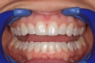 Secondary Gallery Image  | CP 2 Invisalign