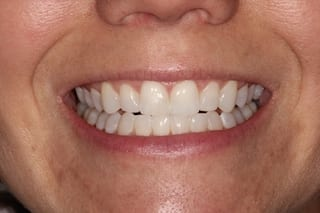 Secondary Gallery Image  | CP 1 Invisalign