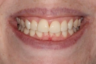 Secondary Gallery Image  | TM 2 Invisalign