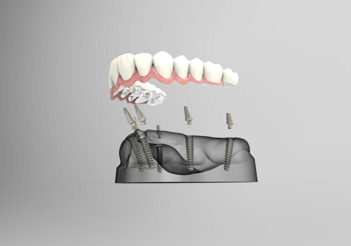Affordable Implant-supported Dentures in Plano Texas