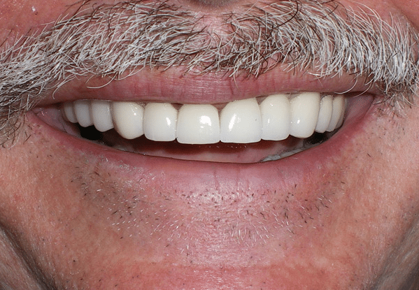 After dental crowns in Plano, TX