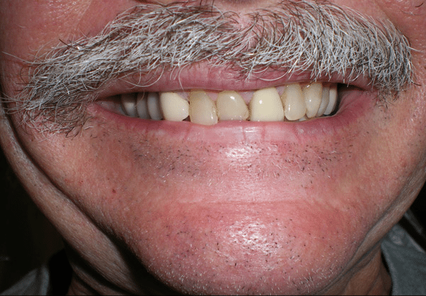Before dental crowns in Plano, TX