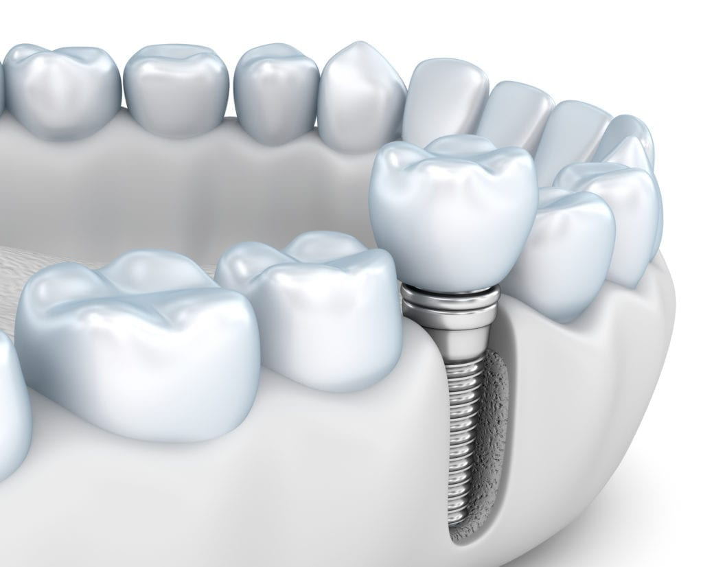 implant dentistry in plano tx