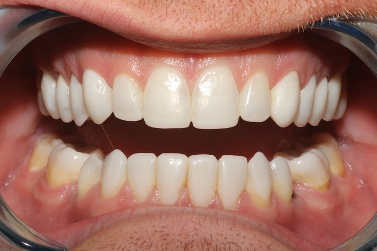 Secondary Gallery Image  | Bonding for Tooth Wear